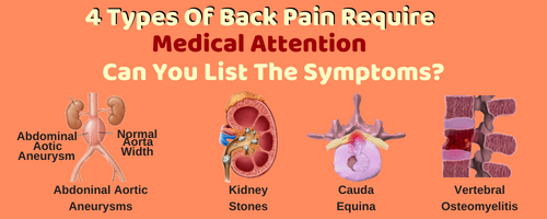 4 Back Paain Symptoms The Require Medical Attention
